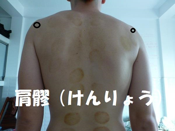 f:id:japanesemassagemasa:20140918233032p:plain