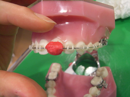Opalescence GISHY GOO silicon-better braces orthodontic ...