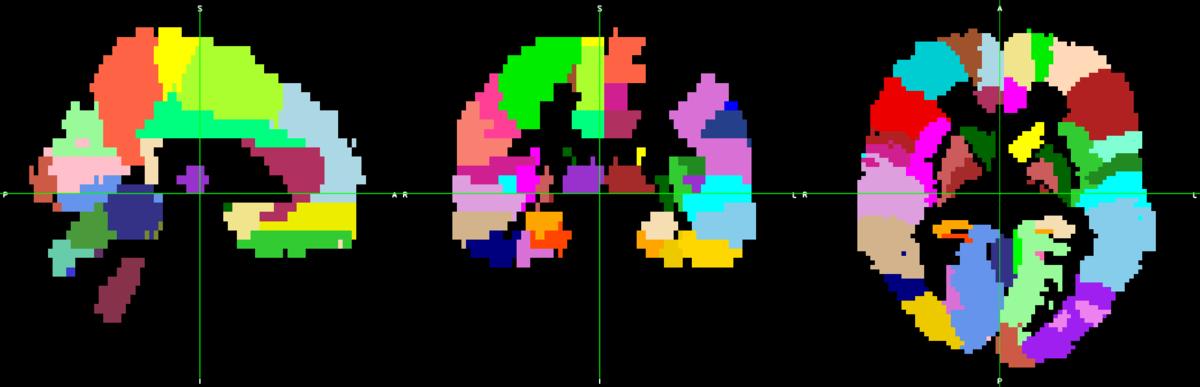 f:id:AIProgrammer:20200501020347p:plain