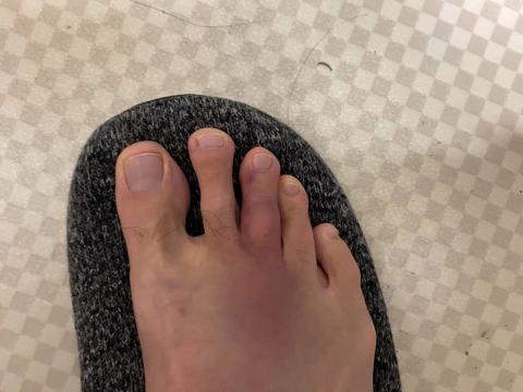 右足の中指を打撲