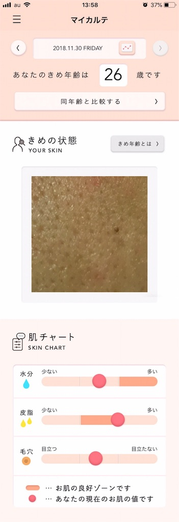 f:id:Androtest:20181130140012j:image