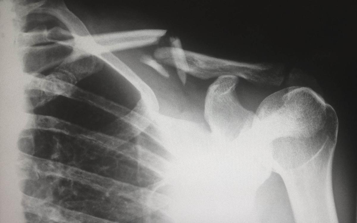 筋トレで肩や腰に関節を痛め、ケガをする可能性がある