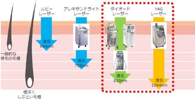 ヒゲ脱毛の医療レーザー機器の種類を示す画像