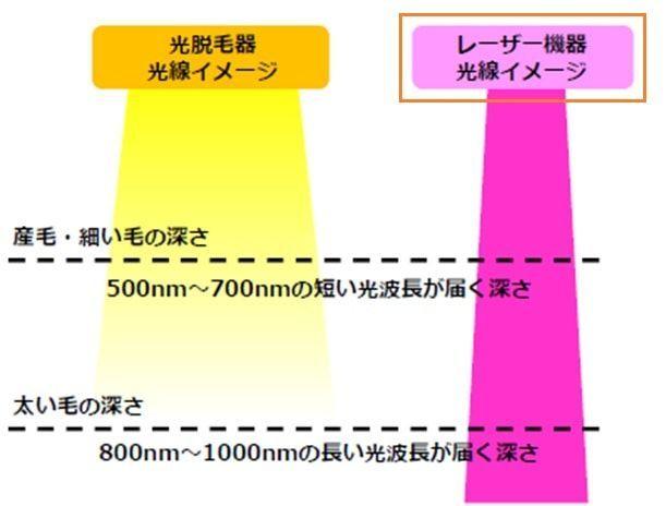 ヒゲ脱毛の医療レーザー機器と光脱毛器の光線イメージの画像
