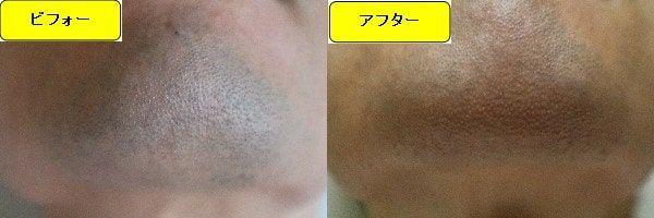 ヒゲ脱毛のクリニックであるゴリラクリニックでヒゲ脱毛した効果を示す画像 施術前と第1回目照射後の顎下の比較画像