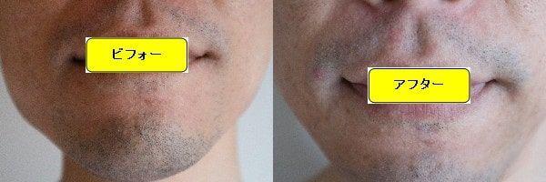 ヒゲ脱毛のクリニックであるゴリラクリニックでヒゲ脱毛した効果を示す画像 施術前と第1回目照射後の正面側の比較画像