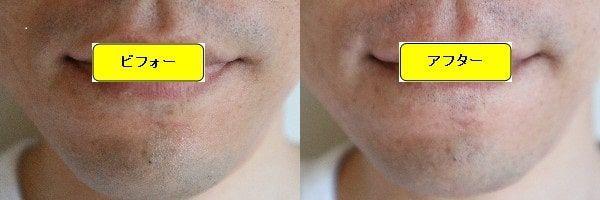 ヒゲ脱毛のクリニックであるゴリラクリニックでヒゲ脱毛した効果を示す画像 施術前と第1回目照射1週間後の正面側の比較画像