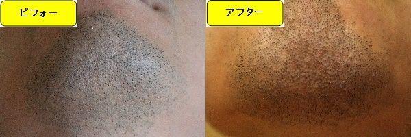 ヒゲ脱毛のクリニックであるゴリラクリニックでヒゲ脱毛した効果を示す画像 施術前と第1回目照射1週間後の顎下の比較画像