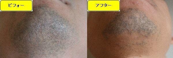 ヒゲ脱毛のクリニックであるゴリラクリニックでヒゲ脱毛した効果を示す画像 施術前と第1回目照射1ヶ月後の顎下の比較画像