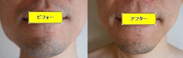 ヒゲ脱毛のクリニックであるゴリラクリニックでヒゲ脱毛した効果を示す画像 施術前と第1回目照射1ヶ月後の正面側の比較画像