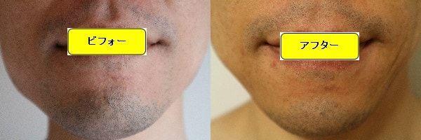 ヒゲ脱毛のクリニックであるゴリラクリニックでヒゲ脱毛した効果を示す画像 施術前と第2回目照射後の正面側の比較画像