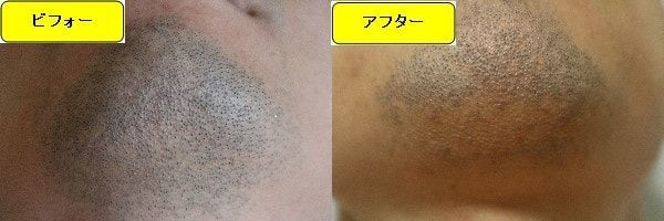ヒゲ脱毛のクリニックであるゴリラクリニックでヒゲ脱毛した効果を示す画像 施術前と第2回目照射後の顎下の比較画像