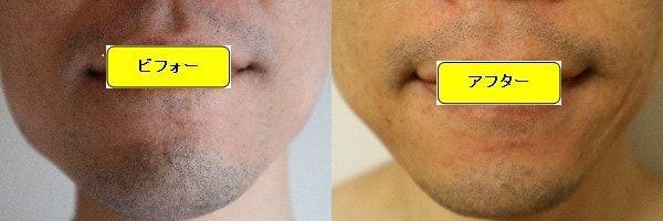 ヒゲ脱毛のクリニックであるゴリラクリニックでヒゲ脱毛した効果を示す画像 施術前と第2回目照射1週間後の正面側の比較画像