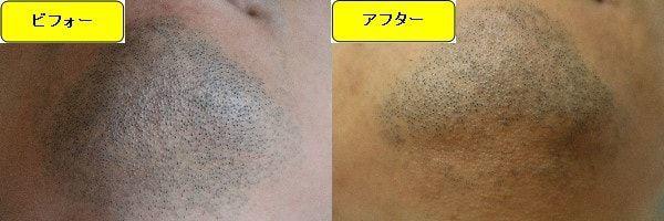 ヒゲ脱毛のクリニックであるゴリラクリニックでヒゲ脱毛した効果を示す画像 施術前と第2回目照射1週間後の顎下の比較画像