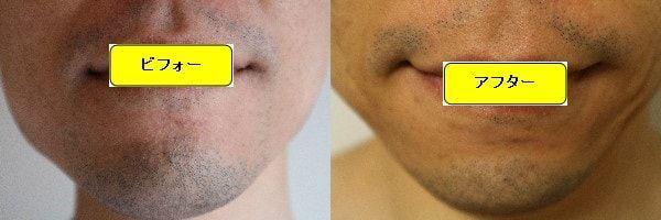 ヒゲ脱毛のクリニックであるゴリラクリニックでヒゲ脱毛した効果を示す画像 施術前と第2回目照射1ヶ月後の正面側の比較画像