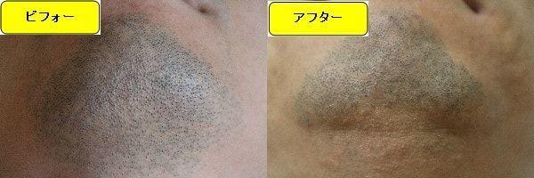 ヒゲ脱毛のクリニックであるゴリラクリニックでヒゲ脱毛した効果を示す画像 施術前と第2回目照射1ヶ月後の顎下の比較画像