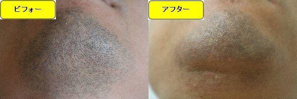 ヒゲ脱毛のクリニックであるゴリラクリニックでヒゲ脱毛した効果を示す画像 施術前と第3回目照射後の顎下の比較画像