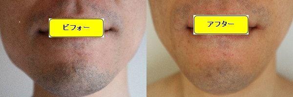 ヒゲ脱毛のクリニックであるゴリラクリニックでヒゲ脱毛した効果を示す画像 施術前と第3回目照射後の正面側の比較画像