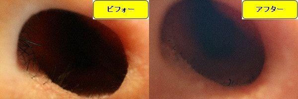 メンズ全身脱毛のクリニックであるメンズリゼで鼻毛脱毛した効果を示す画像 施術前と第1回目照射後の1週間後の比較画像