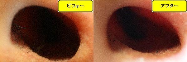 メンズ全身脱毛のクリニックであるメンズリゼで鼻毛脱毛した効果を示す画像 施術前と第1回目照射後の比較画像