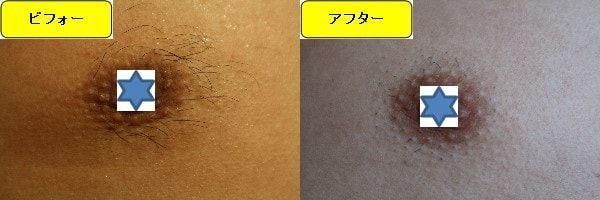 メンズ全身脱毛のクリニックである湘南美容クリニックで乳輪周囲と胸を脱毛した効果を示す画像 施術前と第1回目照射後の比較画像
