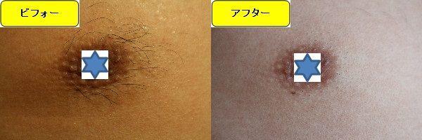 メンズ全身脱毛のクリニックである湘南美容クリニックで乳輪周囲と胸を脱毛した効果を示す画像 施術前と第1回目照射後の1ヶ月後の比較画像