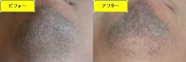 ヒゲ脱毛のクリニックであるゴリラクリニックでヒゲ脱毛した効果を示す画像 施術前と第3回目照射1週間後の顎下の比較画像