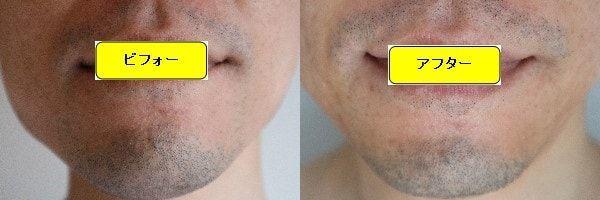 ヒゲ脱毛のクリニックであるゴリラクリニックでヒゲ脱毛した効果を示す画像 施術前と第3回目照射1週間後の正面側の比較画像