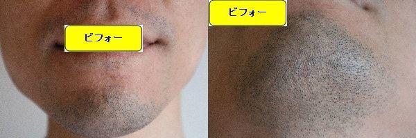 ヒゲ脱毛をする前の正面と顎下の画像