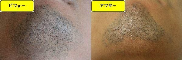 ヒゲ脱毛のクリニックであるゴリラクリニックでヒゲ脱毛した効果を示す画像 施術前と第3回目照射1ヶ月後の顎下の比較画像