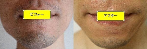 ヒゲ脱毛のクリニックであるゴリラクリニックでヒゲ脱毛した効果を示す画像 施術前と第3回目照射1ヶ月後の正面側の比較画像