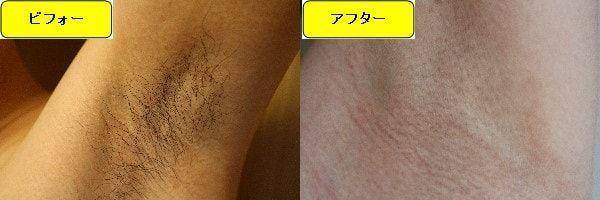 メンズ全身脱毛のクリニックである湘南美容クリニックでワキ毛脱毛した効果を示す画像 施術前と第2回目照射後の1ヶ月後の比較画像