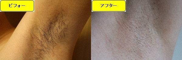 メンズ全身脱毛のクリニックである湘南美容クリニックでワキ毛脱毛した効果を示す画像 施術前と第2回目照射後の比較画像