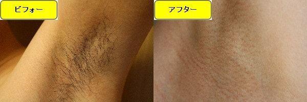 メンズ全身脱毛のクリニックである湘南美容クリニックでワキ毛脱毛した効果を示す画像 施術前と第3回目照射後の1ヶ月後の比較画像