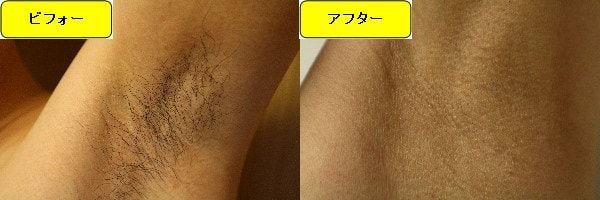 メンズ全身脱毛のクリニックである湘南美容クリニックでワキ毛脱毛した効果を示す画像 施術前と第3回目照射後の比較画像