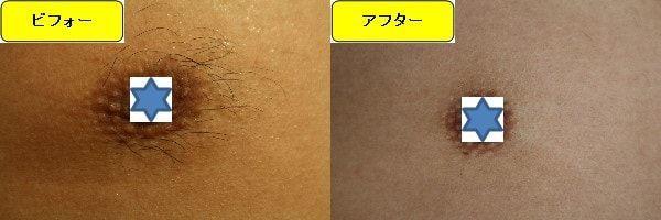 メンズ全身脱毛のクリニックである湘南美容クリニックで乳輪周囲と胸を脱毛した効果を示す画像 施術前と第2回目照射後の1ヶ月後の比較画像