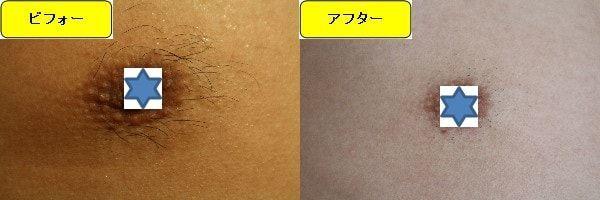 メンズ全身脱毛のクリニックである湘南美容クリニックで乳輪周囲と胸を脱毛した効果を示す画像 施術前と第2回目照射後の1週間後の比較画像