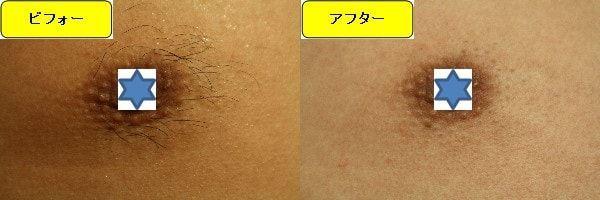 メンズ全身脱毛のクリニックである湘南美容クリニックで乳輪周囲と胸を脱毛した効果を示す画像 施術前と第2回目照射後の比較画像