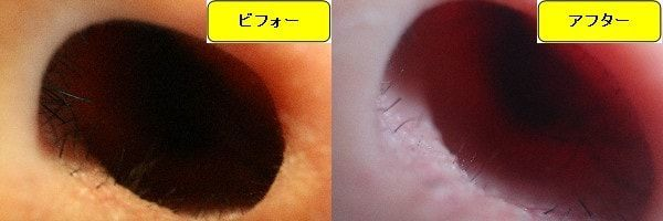 メンズ全身脱毛のクリニックであるメンズリゼで鼻毛脱毛した効果を示す画像 施術前と第2回目照射後の1ヶ月後の比較画像