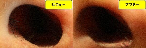 メンズ全身脱毛のクリニックであるメンズリゼで鼻毛脱毛した効果を示す画像 施術前と第2回目照射後の1週間後の比較画像