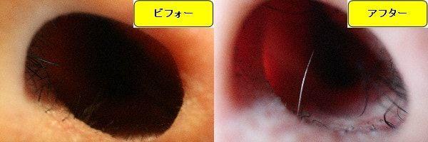 メンズ全身脱毛のクリニックであるメンズリゼで鼻毛脱毛した効果を示す画像 施術前と第2回目照射後の比較画像
