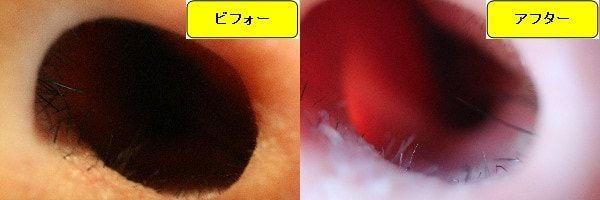 メンズ全身脱毛のクリニックであるメンズリゼで鼻毛脱毛した効果を示す画像 施術前と第3回目照射後の1ヶ月後の比較画像
