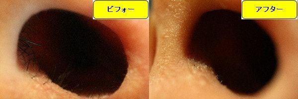 メンズ全身脱毛のクリニックであるメンズリゼで鼻毛脱毛した効果を示す画像 施術前と第3回目照射後の比較画像