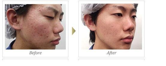 ニキビ、ニキビ跡の治療であるアクネライトを行う前と後の比較画像