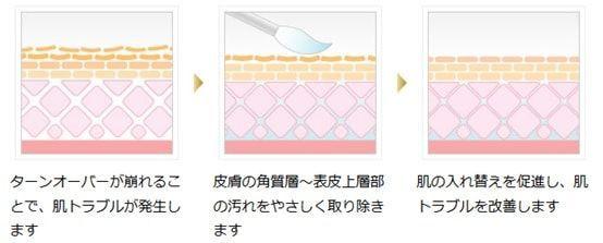 ニキビ、ニキビ跡の治療であるケミカルピーリングの説明を示すイメージ画像