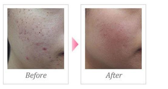 ニキビ、ニキビ跡の治療であるダーマペンを行う前と後の比較画像