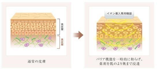 ニキビ治療であるイオン導入を説明したイメージ画像