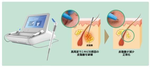 ゴリラクリニックで行っているニキビ治療の様子を示すイメージ画像