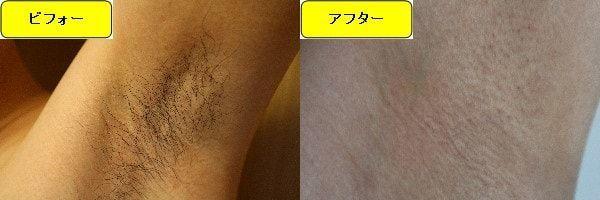 メンズ全身脱毛のクリニックである湘南美容クリニックでワキ毛脱毛した効果を示す画像 施術前と第4回目照射後の比較画像