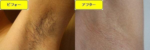 メンズ全身脱毛のクリニックである湘南美容クリニックでワキ毛脱毛した効果を示す画像 施術前と第4回目照射後の1ヶ月後の比較画像